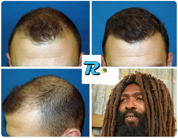 Alopecia antes y despues del tratamiento